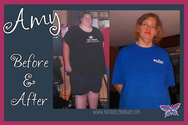 Before and After - Amy